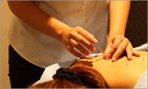 鍼灸と指圧整体マッサージ